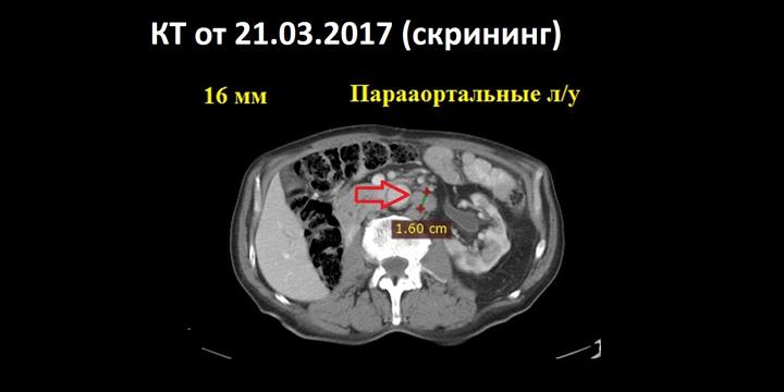 Результаты КТ от 21.03.2017